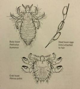 Picture of the different lice from the body louse, the head louse, the crab louse